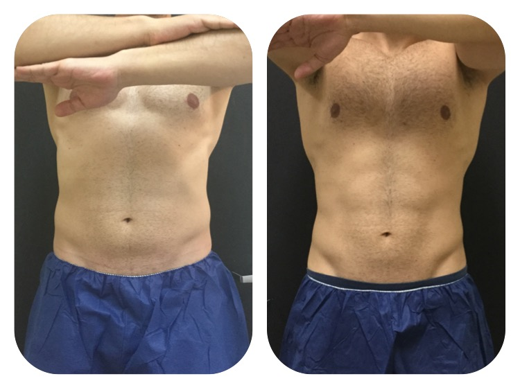 Weight Loss 4 Things To Know About Coolsculpting Public Health Care